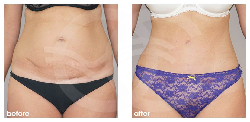 Tummy Tuck Before and After Abdominoplasty restored muscles Marbella Ocean Clinic