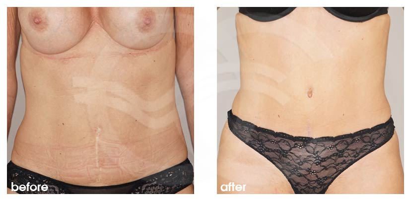 Tummy Tuck Before and After Abdominoplasty improved shape tummy area Marbella Ocean Clinic