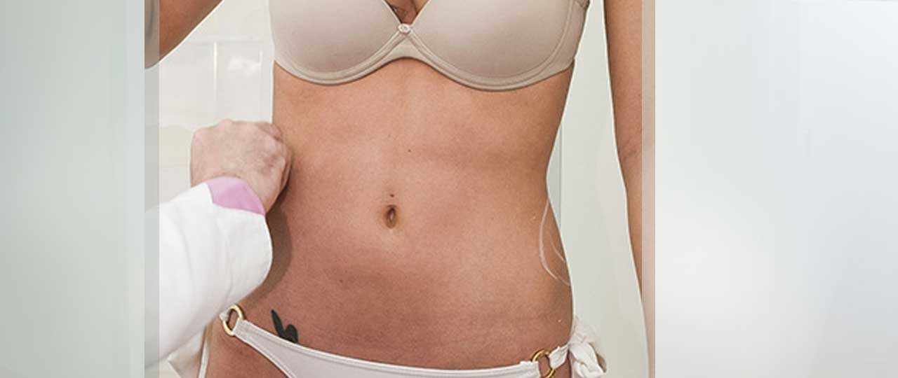 Tummy Tuck Abdominoplasty Before and After. Marbella Ocean Clinic
