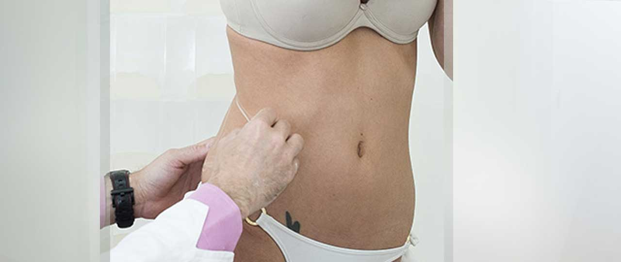 Tummy Tuck Abdominoplasty More About. Marbella Ocean Clinic