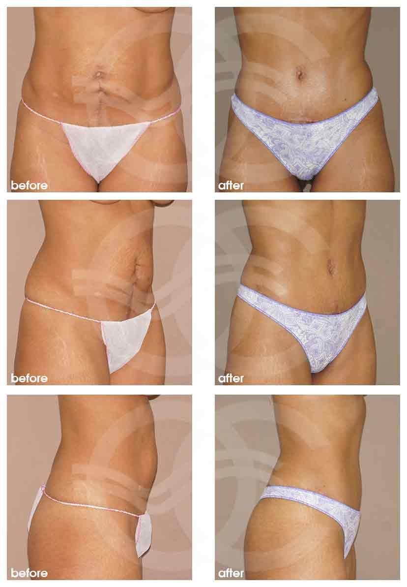BAUCHDECKENSTRAFFUNG Abdominoplastik Ocean Clinic Marbella Spanien