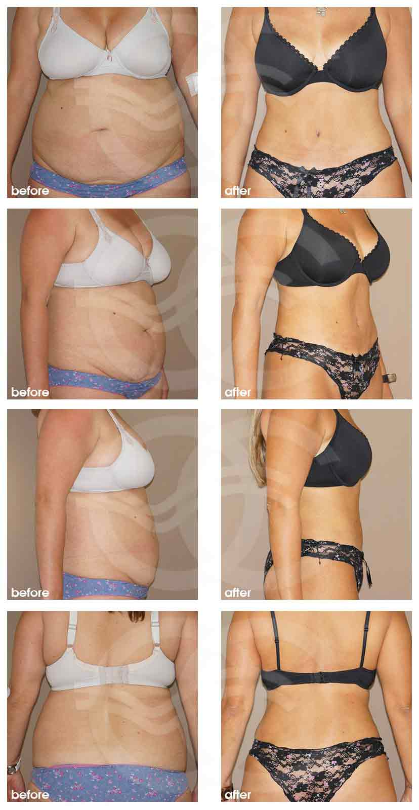 Ocean Clinic Tummy Tuck with Liposuction Before After Photo Marbella Spain