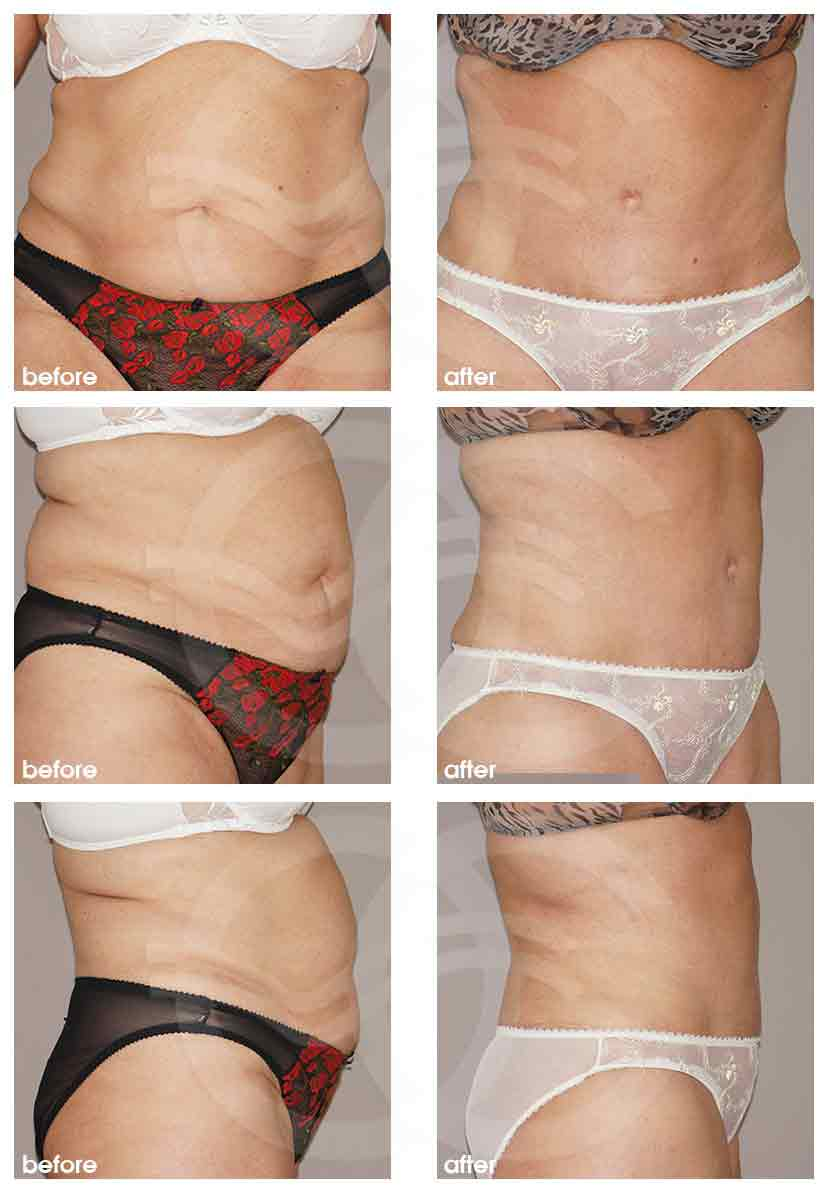 Ocean Clinic Lipo-Abdominoplasty Before After Photo Marbella Spain