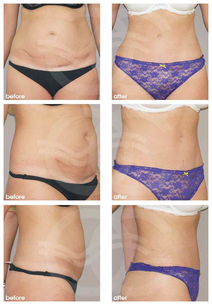 Ocean Clinic Tummy Tuck remove excess fat and skin Before After Marbella Spain