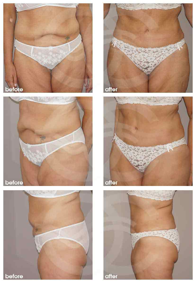 Ocean Clinic Abdominoplasty Before After Photo Marbella Spain