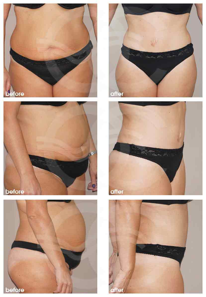 Ocean Clinic Tummy Tuck Before After Photo Marbella Spain