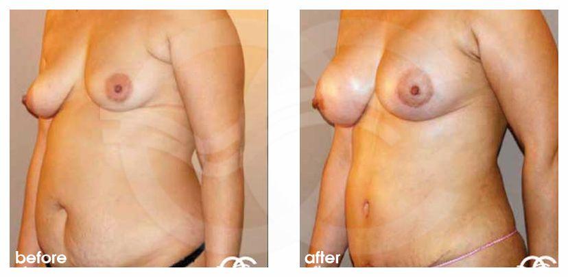 Abdominoplastie Avant Après Photo Ocean Clinic Marbella Espagne