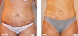 Tummy Tuck Abdominoplasty Before After Photo Ocean Clinic case 09 Marbella