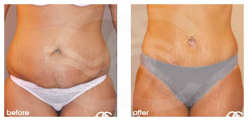 Tummy Tuck Before After Abdominoplasty in Saldanha Technique Photo frontal Ocean Clinic Marbella