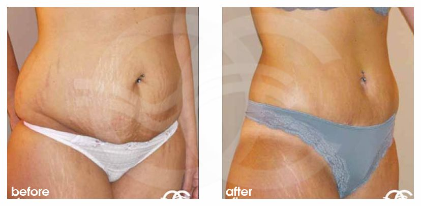 Tummy Tuck Before After Abdominoplasty in Saldanha Technique Photo side Ocean Clinic Marbella