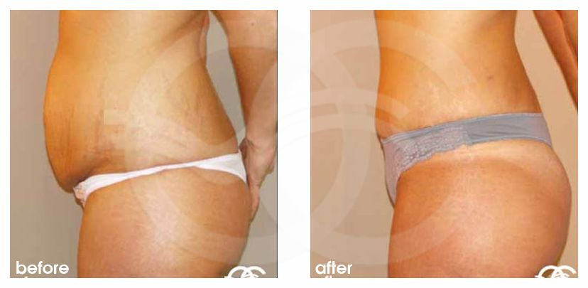 Tummy Tuck Before After Abdominoplasty in Saldanha Technique Photo profile Ocean Clinic Marbella