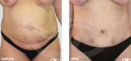 Tummy Tuck Abdominoplasty Before After Photo Ocean Clinic case 10 Marbella