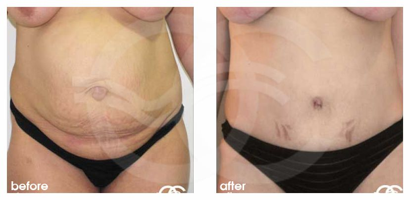 Tummy Tuck LIPOSUCTION HERNIA REPAIR before after forntal