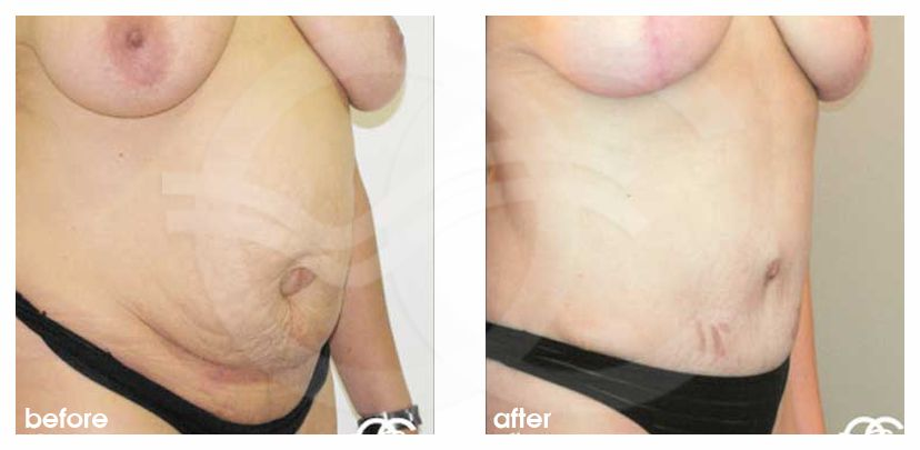 Abdominoplastia REPARACIÓN HERNIA UMBILICAL before after side