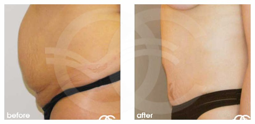 Tummy Tuck Before After Abdominoplasty Liposuction Hernia Repair Photo profile Ocean Clinic Marbella
