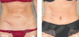 Tummy Tuck Abdominoplasty Before After Photo Ocean Clinic case 11 Marbella