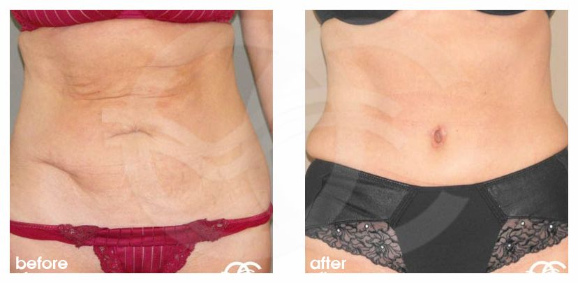 Tummy Tuck Before After Abdominoplasty Lipoabdominoplasty Saldanha Photo frontal Ocean Clinic Marbella