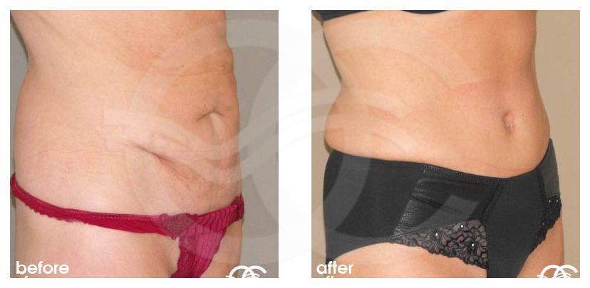 Tummy Tuck LIPOABDOMINOPLASTY SALDANHA before after side