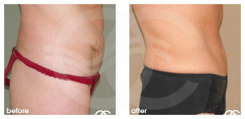 Tummy Tuck LIPOABDOMINOPLASTY SALDANHA before after perfil