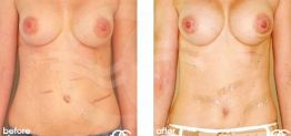 Tummy Tuck Abdominoplasty Before After Photo Ocean Clinic case 12 Marbella
