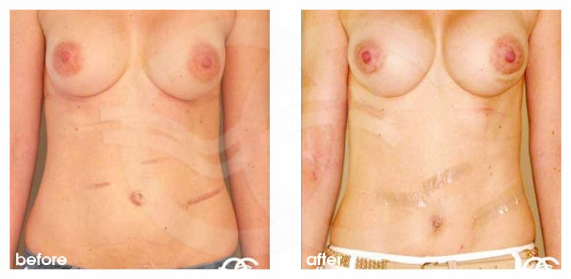 Tummy Tuck CORRECTION ABDOMINAL SCARS before after forntal