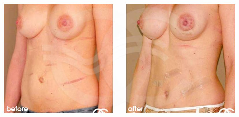 Tummy Tuck Before After Abdominoplasty Correction Abdominal Scars Photo side Ocean Clinic Marbella