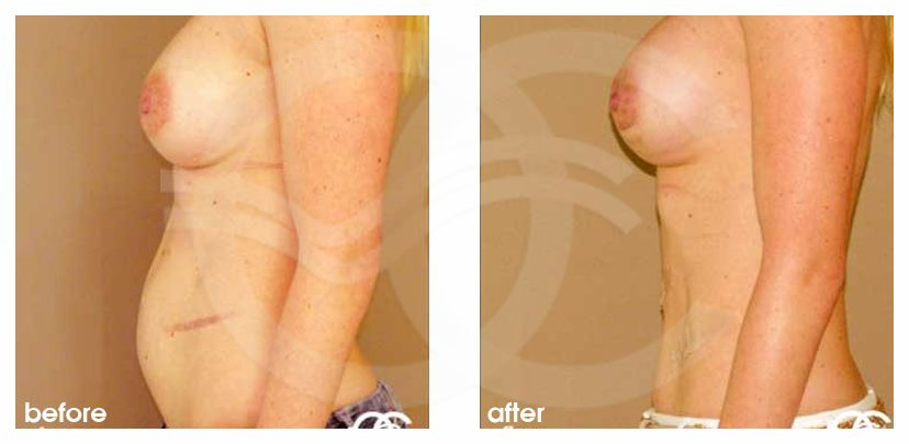 Tummy Tuck Before After Abdominoplasty Correction Abdominal Scars Photo profile Ocean Clinic Marbella