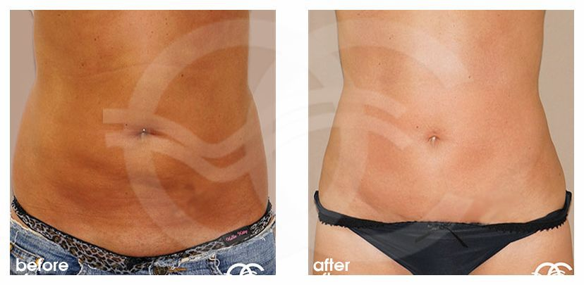 Abdominoplastia CON LIPOESCULTURA before after forntal