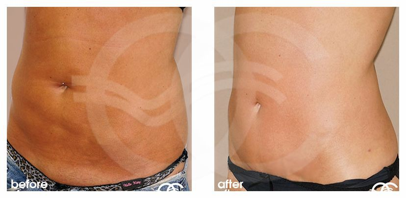 Tummy Tuck WITH LIPOSCULPTURE ante/post-op lateral