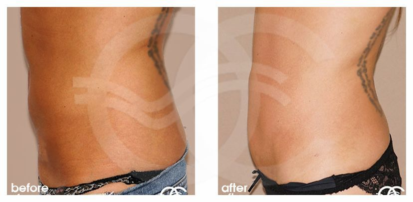 Tummy Tuck Before After Abdominoplasty with Liposculpture Photo profile Ocean Clinic Marbella
