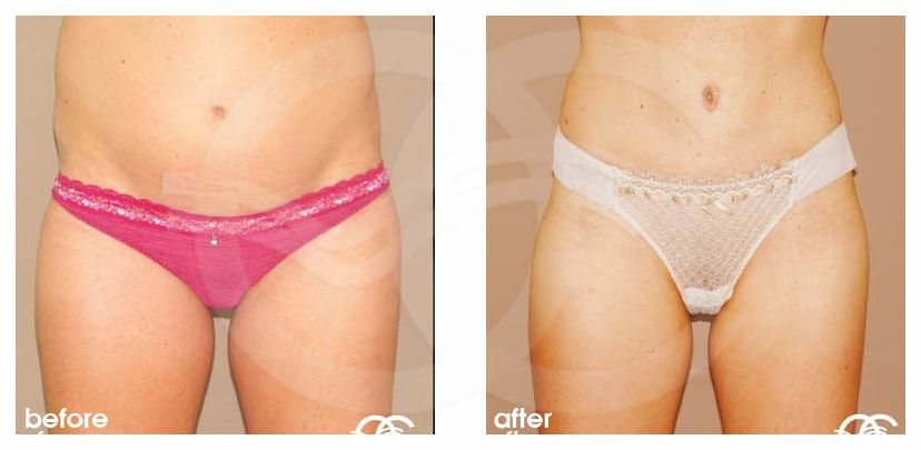 Tummy Tuck Before After Abdominoplasty repair Abdominal Wall Photo frontal Ocean Clinic Marbella