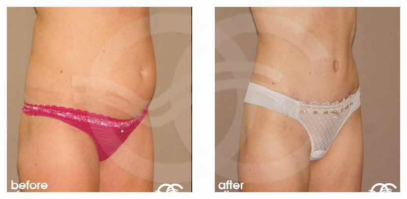 Abdominoplastia REPARAR PARED ABDOMINAL before after side