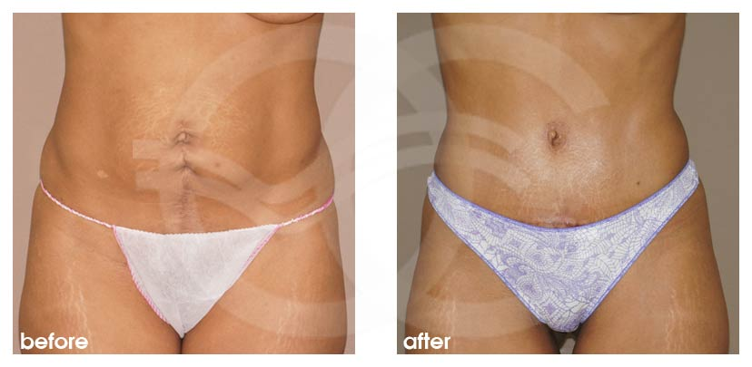 Tummy Tuck Before After Abdominoplasty Umbilical Hernia Repair Photo frontal Ocean Clinic Marbella