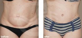 Tummy Tuck Abdominoplasty Before After Photo Ocean Clinic case 17 Marbella