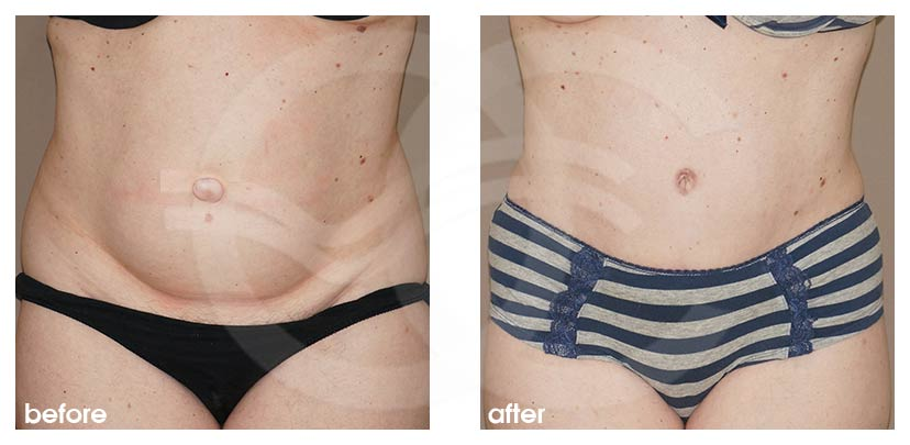 Tummy Tuck Before After Abdominoplasty Lipoabdominoplasty Photo frontal Ocean Clinic Marbella