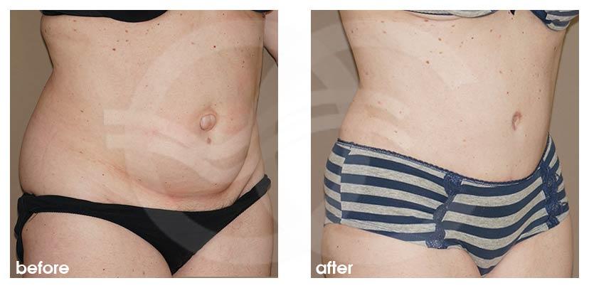 Lipo-Bauchdeckenstraffung Vorher Nachher Abdominoplastik in Saldanhas Technik Foto seitlich. Marbella Ocean Clinic
