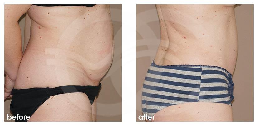 Abdominoplastia con Liposucción Foto perfil Ocean Clinic Marbella Málaga