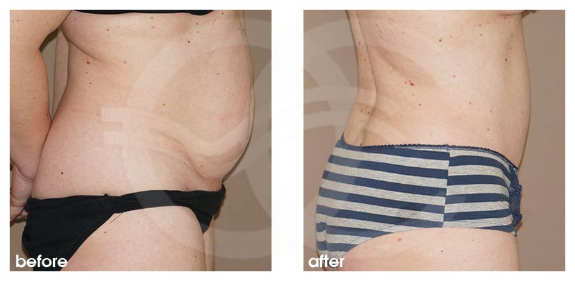 Tummy Tuck Before After Abdominoplasty Lipoabdominoplasty Photo profile Ocean Clinic Marbella