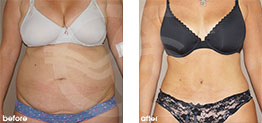 Tummy Tuck Abdominoplasty Before After Photo Ocean Clinic case 18 Marbella