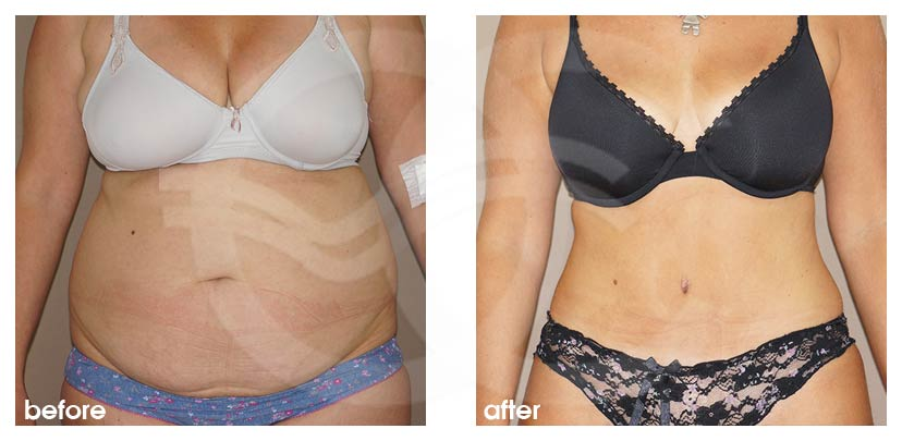 Tummy Tuck Before After Abdominoplasty Combination Liposuction Photo frontal Ocean Clinic Marbella