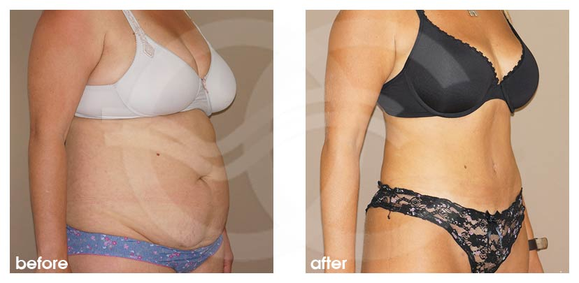 Tummy Tuck Before After Abdominoplasty Combination Liposuction Photo side Ocean Clinic Marbella