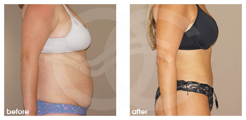 Tummy Tuck Before After Abdominoplasty Combination Liposuction Photo profile Ocean Clinic Marbella