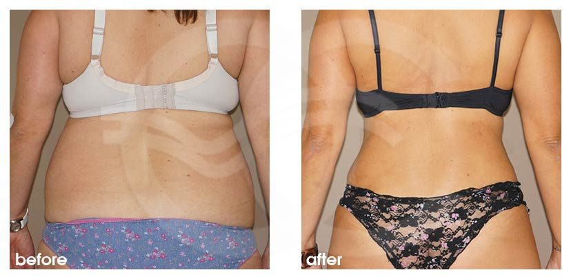 Tummy Tuck Before After Abdominoplasty Combination Liposuction Photo back Ocean Clinic Marbella