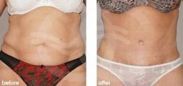 Tummy Tuck Abdominoplasty Before After Photo Ocean Clinic case 19 Marbella