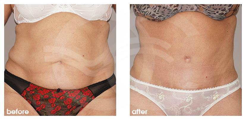 Bauchdeckenstraffung Vorher Nachher Lipo-Abdominoplastik Foto vorne. Marbella Ocean Clinic