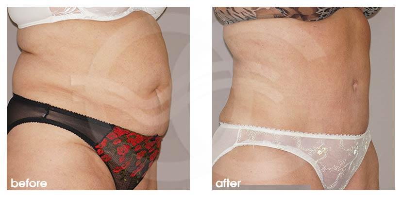 Bauchdeckenstraffung Vorher Nachher Lipo-Abdominoplastik Foto seitlich. Marbella Ocean Clinic