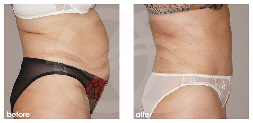 Tummy Tuck Before After Abdominoplasty with Liposuction Photo profile Ocean Clinic Marbella