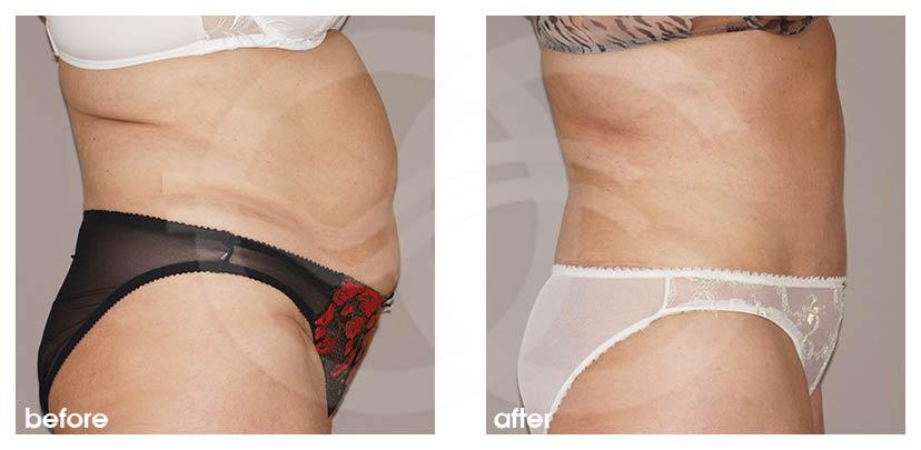 Bauchdeckenstraffung Vorher Nachher Lipo-Abdominoplastik Foto profil. Marbella Ocean Clinic