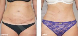 Tummy Tuck Abdominoplasty Before After Photo Ocean Clinic case 20 Marbella