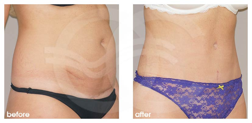 Tummy Tuck Before After Abdominoplasty Restored Muscles Photo side Ocean Clinic Marbella